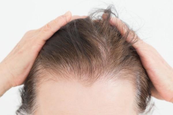 薄毛や白髪が気になっている更年期の女性